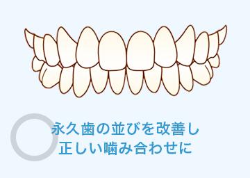 永久歯の並びを改善し正しい噛み合わせに
